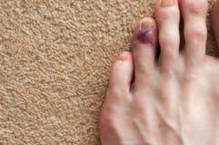 Broken toe showing bruising on skin due to injury. Broken bone on toe showing bruising on skin due to injury stock photo