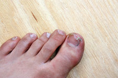 Broken toenail. Injury accident broken toenail man stock photography