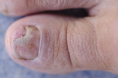 Broken toenail with fungus infection Stock Photography