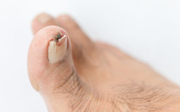 Broken toenail. On white background royalty free stock photography