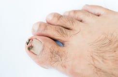 Broken toenail. On white background royalty free stock images