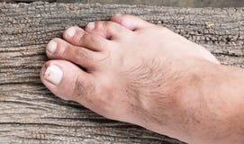 Broken toenail. On wood background royalty free stock photos