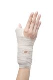 Broken woman arm in a cast Stock Image