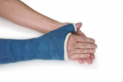 Broken wrist, arm with a blue fiberglass cast. My broken wrist in a blue fiberglass cast on a white background royalty free stock photo