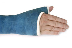 Broken wrist, arm with a blue fiberglass cast. My broken wrist in a blue fiberglass cast on a white background royalty free stock images