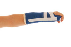 Broken wrist in gypsum Royalty Free Stock Image