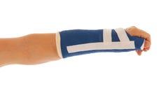 Broken wrist in gypsum Royalty Free Stock Image