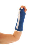 Broken wrist in gypsum Royalty Free Stock Photos