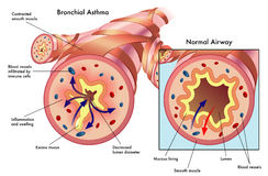 Bronchial asthma Stock Photography