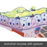 Bronchiale Schleimhaut mit Sputum Stockfotos