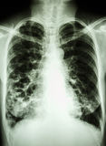 Bronchiectasis. Film chest X-ray PA upright : show multiple lung bleb at both lung Royalty Free Stock Images