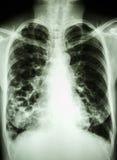 Bronchiectasis Royalty Free Stock Images