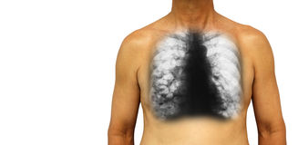 Bronchiectasis .  Human chest with x-ray chest show multiple lung bleb and cyst due to chronic infection . Isolated background . B Royalty Free Stock Photography
