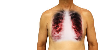 Bronchiectasis .  Human chest with x-ray chest show multiple lung bleb and cyst due to chronic infection . Isolated background . B Royalty Free Stock Images
