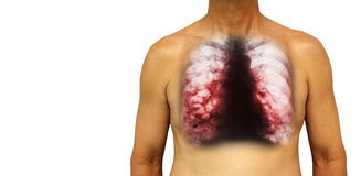 Bronchiectasis .  Human chest with x-ray chest show multiple lung bleb and cyst due to chronic infection . Isolated background . B Stock Photography
