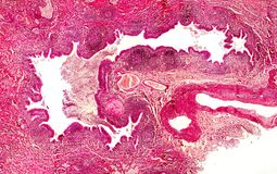 Bronchiectasis, light photomicrograph. Bronchiectasis, cross-section through bronchus. Light photomicrograph showing dilatated and distorted bronchus containing royalty free stock photo