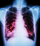 Bronchiectasis. X-ray chest show : multiple lung bleb and cyst due to chronic infection Stock Images
