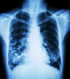 Bronchiectasis. X-ray chest show : multiple lung bleb and cyst due to chronic infection Royalty Free Stock Images