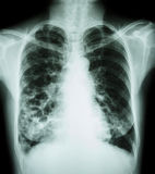Bronchiectasis. X-ray chest show : multiple lung bleb and cyst due to chronic infection Stock Photo