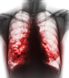 Bronchiectasis .  X-ray chest show multiple lung bleb and cyst due to chronic infection . Front view Stock Images