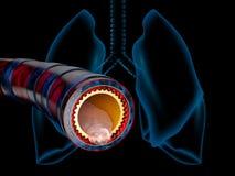 Bronchit anatomia, ?luz wydzielony jako klatki piersiowej zimno jako 3D ilustracja royalty ilustracja