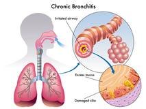 Bronchite continuelle Photographie stock
