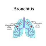 bronchite La struttura anatomica dell'essere umano Immagini Stock Libere da Diritti