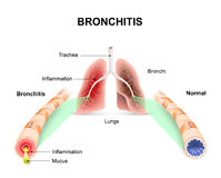 Bronchitis Royalty Free Stock Photo