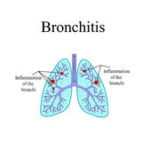 Bronchitis. The anatomical structure of the human Royalty Free Stock Images