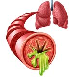 Bronchitis Anatomy Concept. As an inflammation of bronchial tube lining with thick mucus secreted as a chest cold as a 3D illustration elements Stock Image