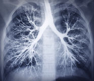 Bronchoscopybild. Bröstkorgröntgenstråle. Sunda lungor Arkivfoton