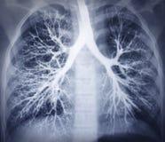 Bronchoskopia wizerunek. Klatki piersiowej promieniowanie rentgenowskie. Zdrowi płuca Zdjęcia Stock
