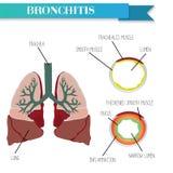 Bronco sano e infiammato Bronchite cronica illustrazione vettoriale