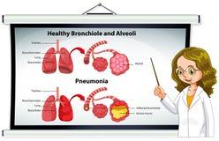 Bronquiolos y alvéolos sanos de explicación del doctor libre illustration