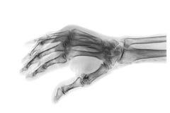Brott på det 3rd och 4th metacarpal benet Filmröntgenstråle av vuxna händer Sned sikt Arkivfoto