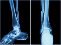 Brottaxel av fibulabenet (benbenet) Röntgenstråle av benet (position 2: sida och främre sikt arkivbild