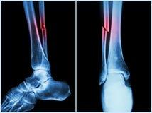 Brottaxel av fibulabenet (benbenet) Röntgenstråle av benet (position 2: sida och främre sikt) Arkivbilder