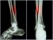 Brottaxel av fibulabenet (benbenet) Röntgenstråle av benet (position 2: sida och främre sikt) royaltyfria bilder