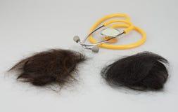 Brown et cheveux perdus de noir avec le stéthoscope image stock