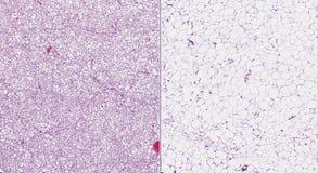 Brown (gelassen) und weißes (rechtes) Fett Stockbilder