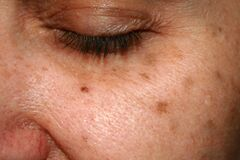 Free Brown Spots On The Face. Pigmentation On The Skin. Brown Age Spots On The Cheek. Stock Images - 173009044
