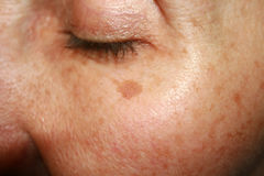Brown spots under the eye. Pigmentation on the face.  Royalty Free Stock Photos