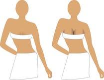 bröstimplantat Royaltyfri Fotografi