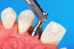 Brucelles tenant l'implant dentaire Image stock