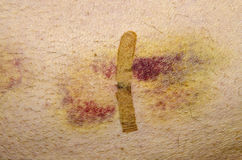 Bruise. After minimally invasive surgery, cut covered with single plaster strip Stock Photos