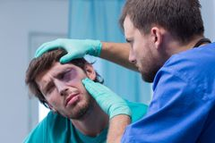 Bruise around the eye. Injured men with bruise around the eye Royalty Free Stock Image