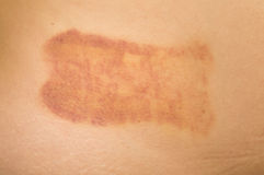 Bruise Stock Photography
