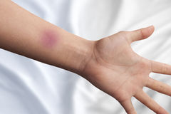 Bruise on a hand Stock Images