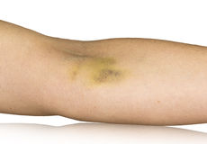 Bruise on hand. On white Royalty Free Stock Image