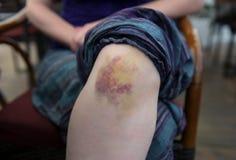 Bruise on knee, closeup shot. Girl with bruise on knee, closeup shot stock photo